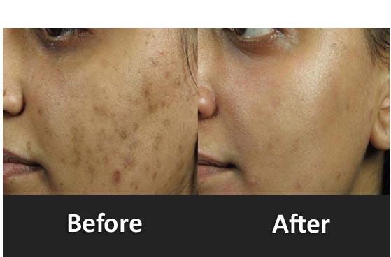 Akne Scars Treatment Orlando Fl
