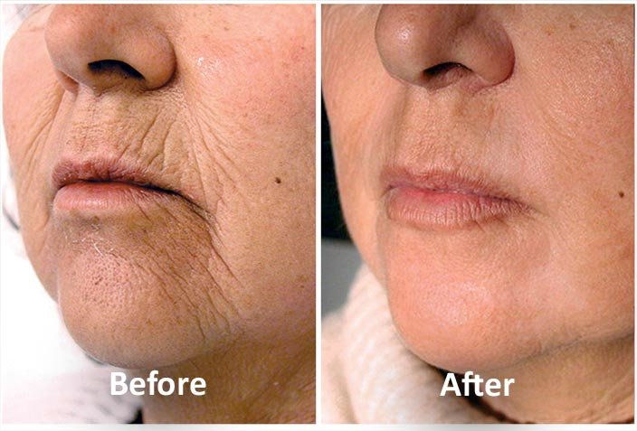 Best Laser Skin Tightening Treatment Orlando Fl