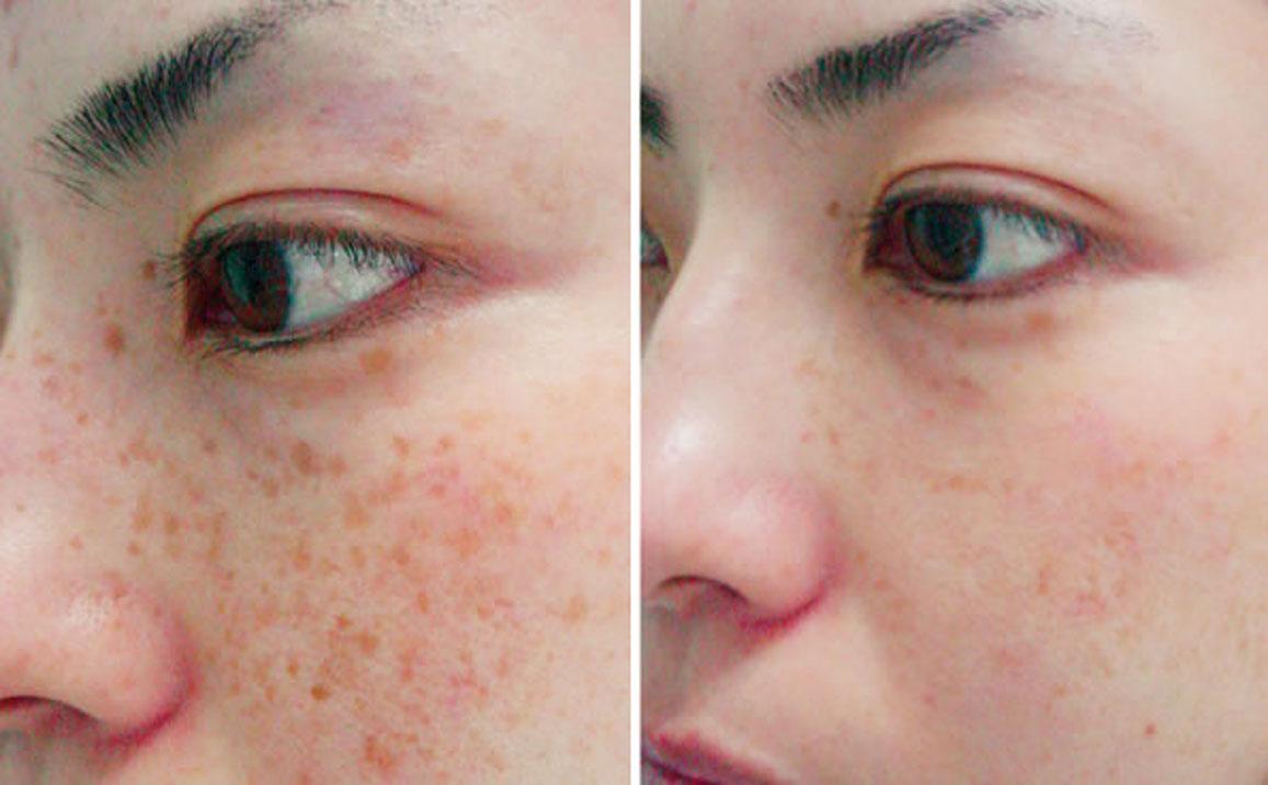 Image result for Skin Pigmentation